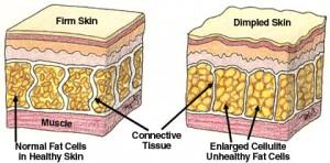 celllulite